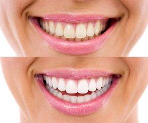 Merită încercat! Iată cinci moduri de albire a dinţilor acasă, cu ingrediente naturale! Rezultatele sunt garantate