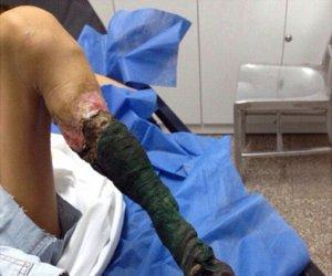 IMAGINI ŞOCANTE! La doar 13 ani, o tânără trăieşte o dramă: Pur şi simplu i-a PUTREZIT piciorul!
