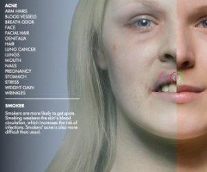 Imagini ȘOC! Nu o să mai pui ţigara în gură: Iată transformările fizice prin care trece un fumător