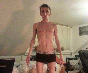 Toți se îngrozeau când îl vedeau, acum nu își pot lua ochii de el! Transformarea incredibilă a unui tânăr anorexic!