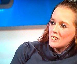 Toți au râs de ea și îi spuneau că are dinți de cal! Dar ceea ce a urmat după scandal te va lăsa fără cuvinte!